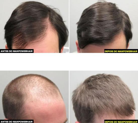 Remédio para Calvície Masculina Natural Man Power Hair 1
