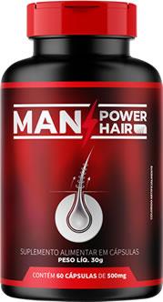 remédio para calvície masculina natural