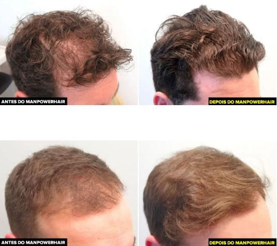 Remédio para Calvície Masculina Natural Man Power Hair 2