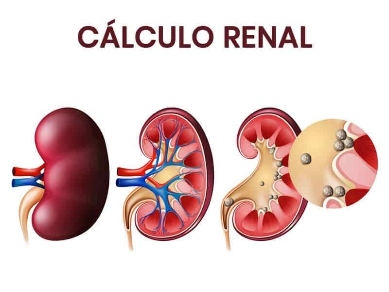 tratamento para Calculo Renal