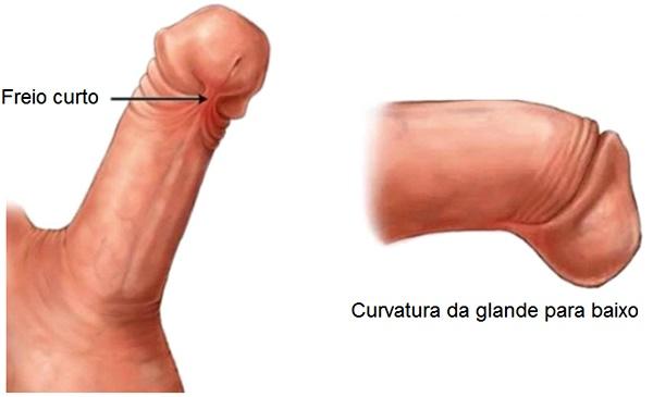 freio do pênis curto